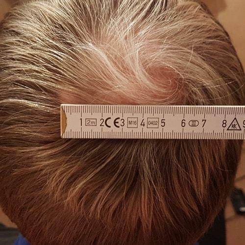 Kreisrunder Haarausfall Stressbedingt Hintergrund Behandlung